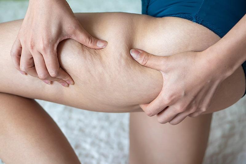 cellulite krachtvoer voor vrouwen